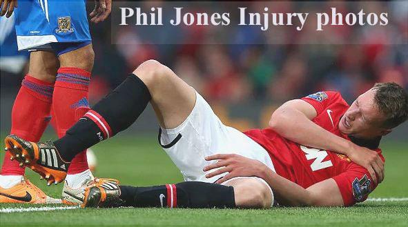 Phil Jones injury